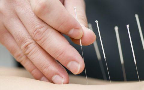 Un estudio de fertilidad encuentra que la acupuntura es ineficaz en la fecundación in vitro